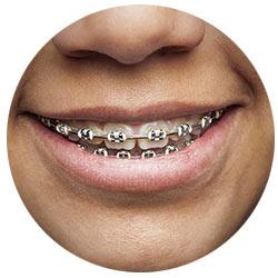 ad-ortodonciainfantil