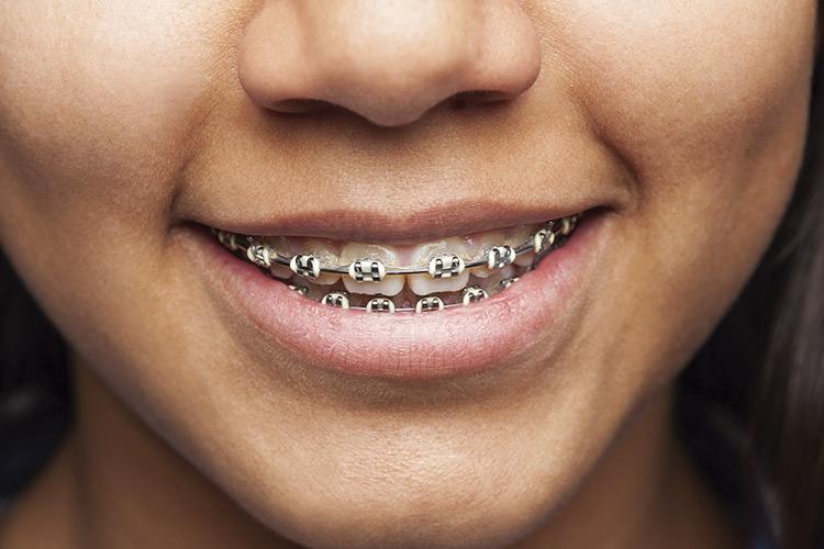 img-ortodonciainfantil